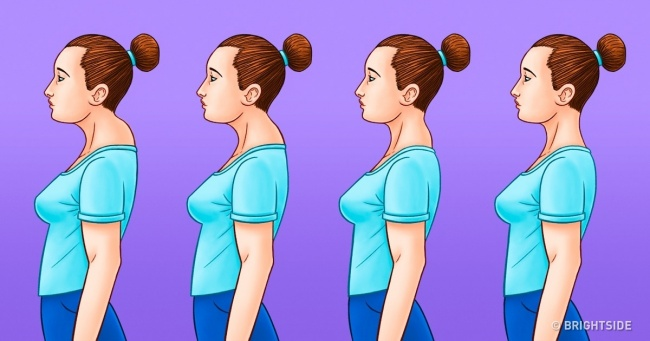 9 Exercises For Upper Crossed Posture One Adjustment